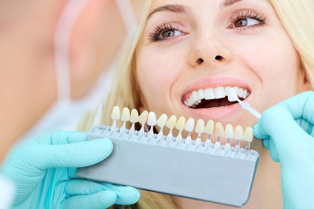 porcelain veneers oral health benefits in Annandale Virginia